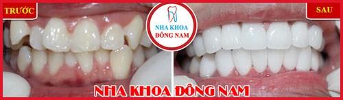 Ung thư răng có phải do di truyền 10