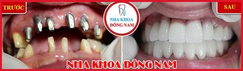 Ung thư răng có phải do di truyền 11
