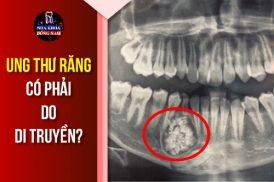 ung thư răng có phải do di truyền