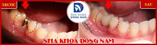 Cấy ghép răng sinh học công nghệ đột phá 1
