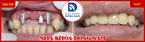 Cấy ghép răng sinh học công nghệ đột phá 2