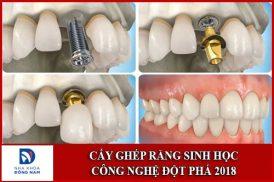 Cấy ghép răng sinh học công nghệ đột phá