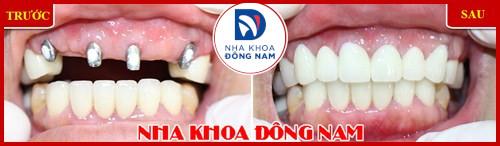 Cấy ghép răng sinh học công nghệ đột phá 4