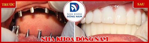 Cấy ghép răng sinh học công nghệ đột phá 5