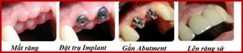 Cấy ghép răng sinh học công nghệ đột phá 7