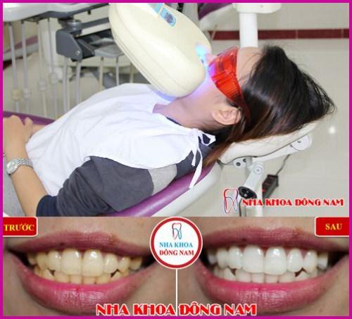 Ra mắt răng sứ bảo hành 10 năm sử dụng trọn đời 11