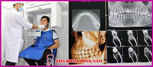 Ra mắt răng sứ bảo hành 10 năm sử dụng trọn đời 12