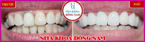 Ra mắt răng sứ bảo hành 10 năm sử dụng trọn đời 2