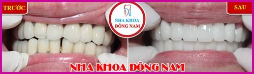 Ra mắt răng sứ bảo hành 10 năm sử dụng trọn đời 5