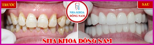 Ra mắt răng sứ bảo hành 10 năm sử dụng trọn đời