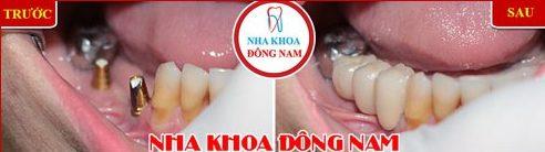 Webtretho review implant etk active của nha khoa Đông Nam 10