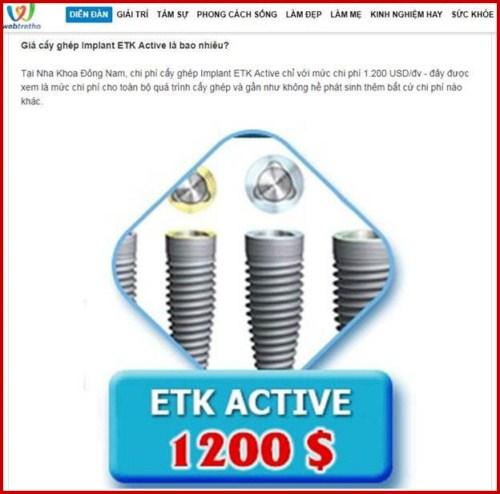 Webtretho review implant etk active của nha khoa Đông Nam 2