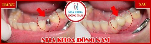Webtretho review implant etk active của nha khoa Đông Nam 7