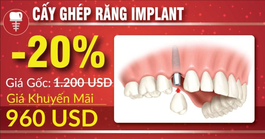 khuyến mãi cấy ghép implant nhân dịp 30/041