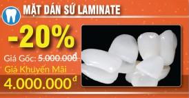khuyến mãi phục hình răng sứ thẩm mỹ nhân dịp 30/04