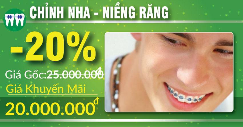 khuyến mãi niềng răng nhân dịp 30/04 1