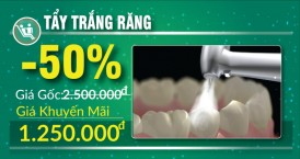 khuyến mãi tẩy trắng răng nhân dịp 30/04 1