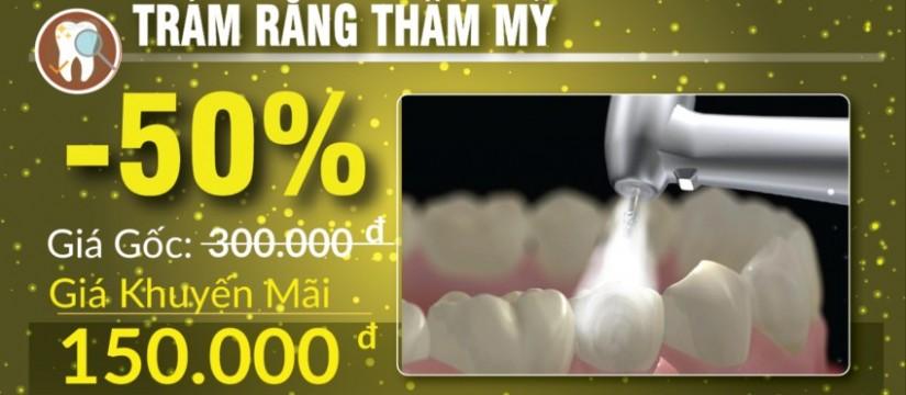 khuyến mãi trám răng nhân dịp 30/04 1