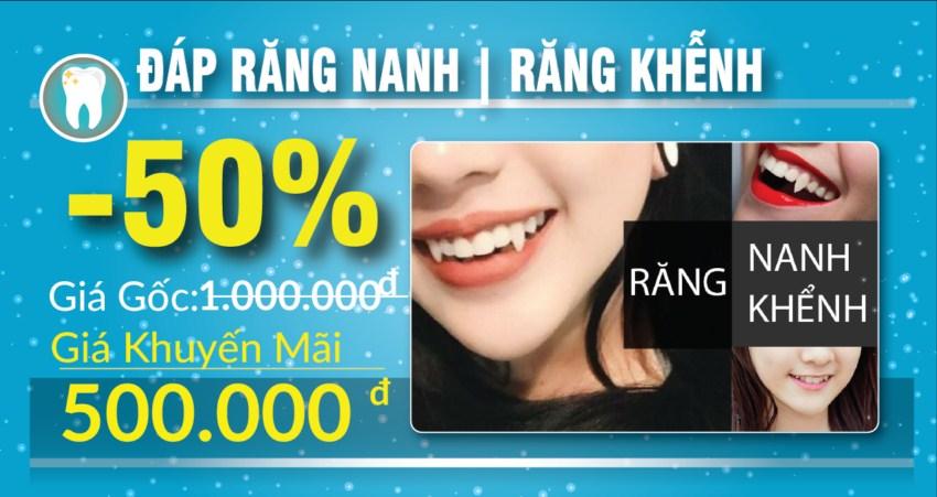 khuyến mãi đắp răng nanh nhân dịp 30/04