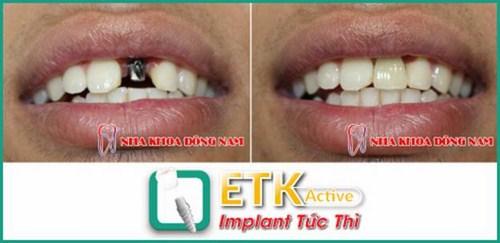 Cấy ghép Implant ETK tại nha khoa Đông Nam 2