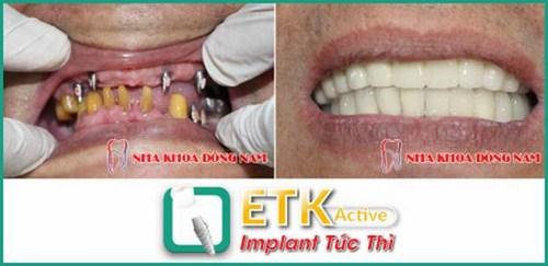 Cấy ghép Implant ETK tại nha khoa Đông Nam 5