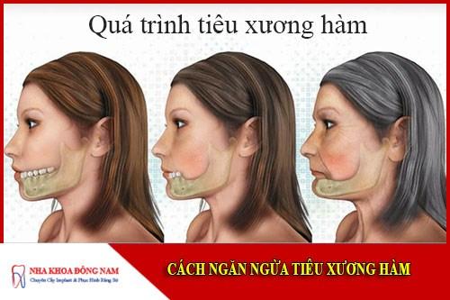 Cách ngăn ngừa tiêu xương hàm