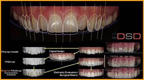 Cắt nướu răng bao nhiêu tiền 2