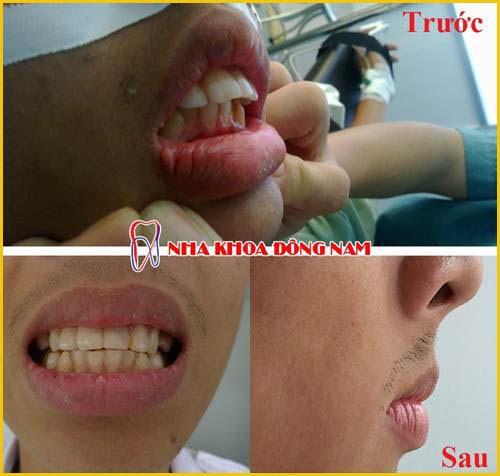 Cắt nướu răng bao nhiêu tiền 3