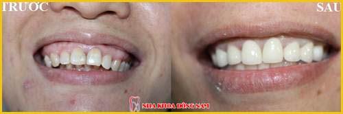 Cắt nướu răng bao nhiêu tiền 4