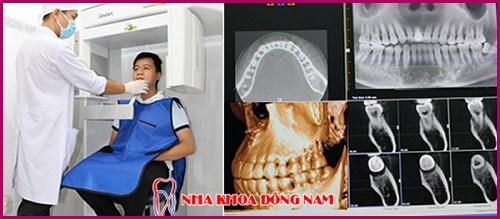Có nên Nhổ răng khểnh không 3