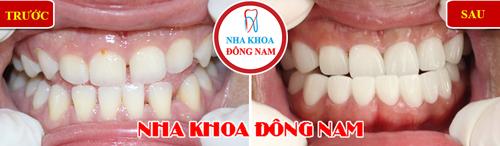 Khuyến mãi bọc răng sứ nhân dịp 30/04 và 01/051