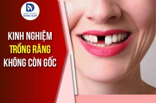 Kinh nghiệm Trồng Răng không còn gốc