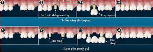 Kinh nghiệm trồng răng không còn gốc 2