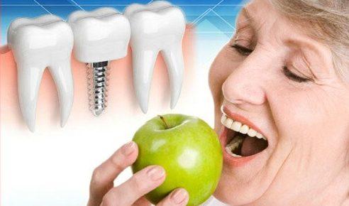 Kinh nghiệm trồng răng không còn gốc 3