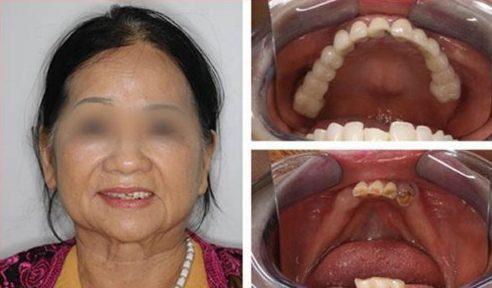 Kinh nghiệm trồng răng không còn gốc 5