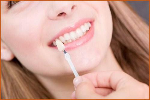 Phủ răng sứ và những điều bạn chưa biết 1