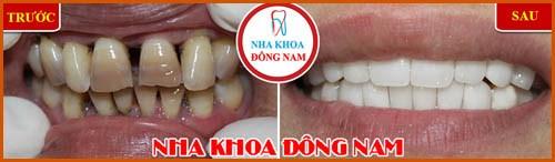 Phủ răng sứ và những điều bạn chưa biết 4