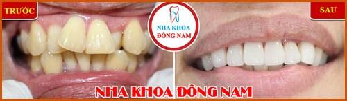 Phủ răng sứ và những điều bạn chưa biết 5