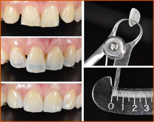 Phủ sứ Nano công nghệ phục hình răng sứ 2