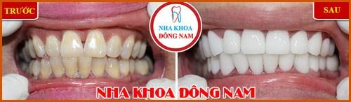 Phủ sứ Nano công nghệ phục hình răng sứ 3