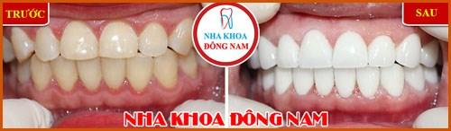 Phủ sứ Nano công nghệ phục hình răng sứ 4
