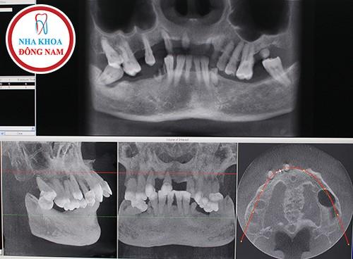 phim x-quang răng và xương hàm