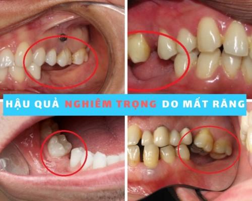 răng bị xô lệch sau khi mất răng