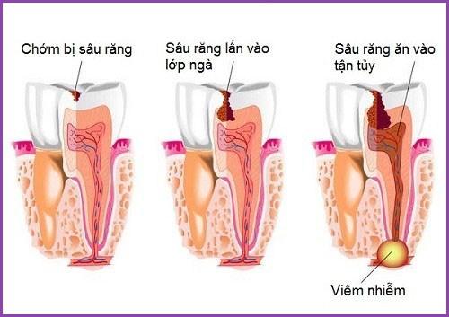 Tủy răng bị viêm nhiễm có nguy hiểm không 1