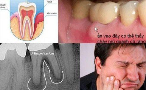 Tủy răng bị viêm nhiễm có nguy hiểm không 2
