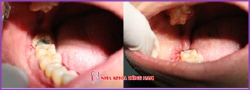 Tủy răng bị viêm nhiễm có nguy hiểm không 5