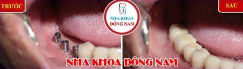 Tủy răng bị viêm nhiễm có nguy hiểm không 7