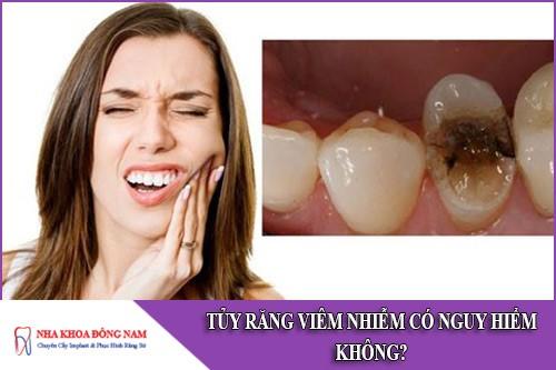 tủy răng bị viêm nhiễm có nguy hiểm không
