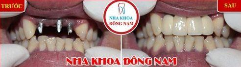 cấy ghép 3 trụ implant răng cửa hàm trên