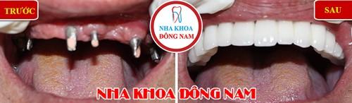 cấy 6 trụ implant phục hồi răng sứ hàm trên